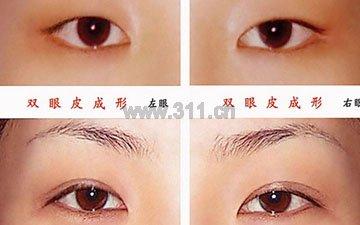 专家推荐:美丽梦工厂第三季选手手术视频-杭州埋线双眼皮费用