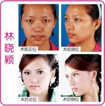 南京开双眼皮专家