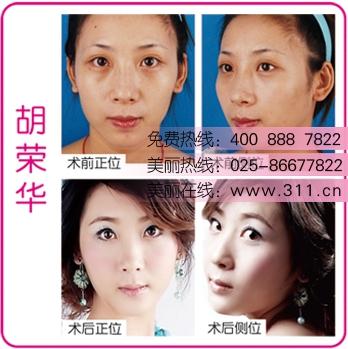 网友推荐:美丽梦工厂第三季选手手术视频-北京隆鼻修复术隆鼻