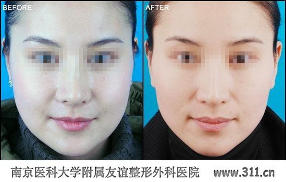 西宁/西宁整形医院脸部整形术前注意事项是什么?以上就是南京医科...