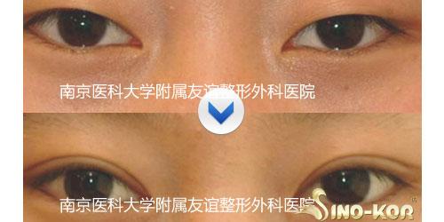 埋线法双眼皮手术方法